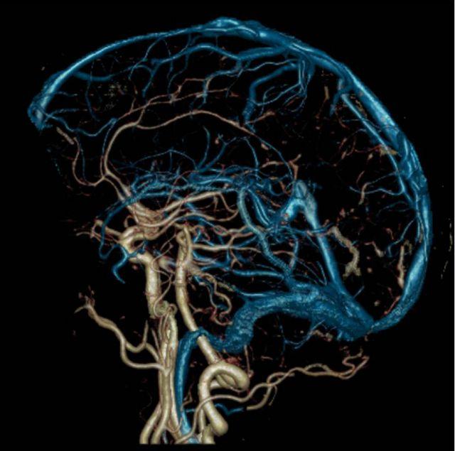 Angiografiya-sosudov-golovnogo-mozga