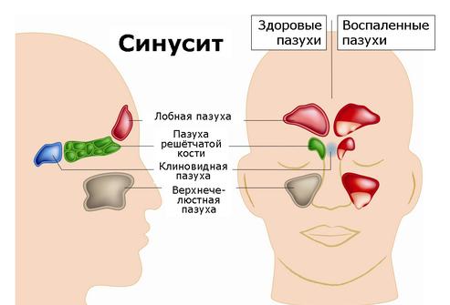 Синусит носовой пазухи 1